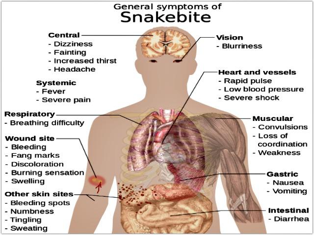 Snake_bite_symptoms