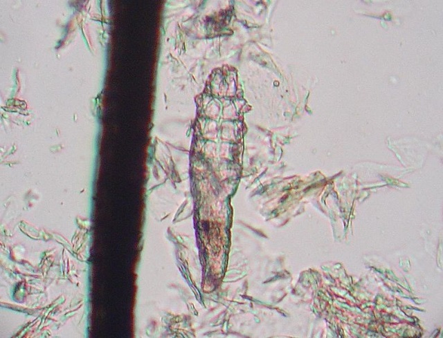 Demodex mite