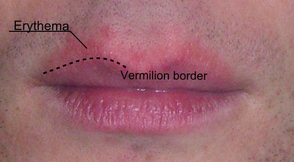 Vermilion Border